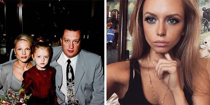 Милана Кержакова — фото до и после пластики